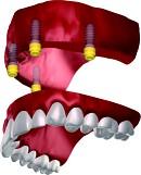 Bezzębie - proteza ruchoma mocowana na magnesach